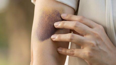 "Huiselijk geweld: ""Franse en Spaanse aanpak verdient navolging"""